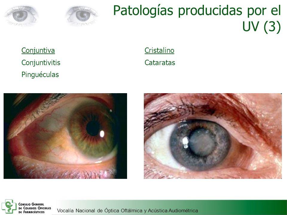 Patologías producidas por el UV (3)
