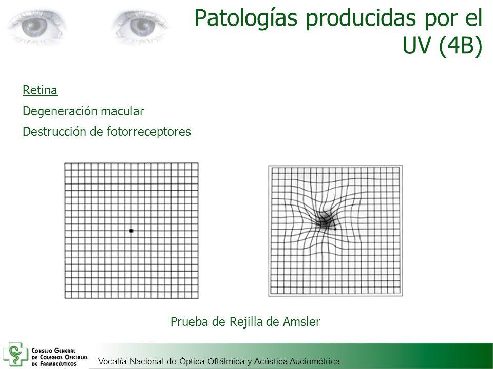 Patologías producidas por el UV (4B)