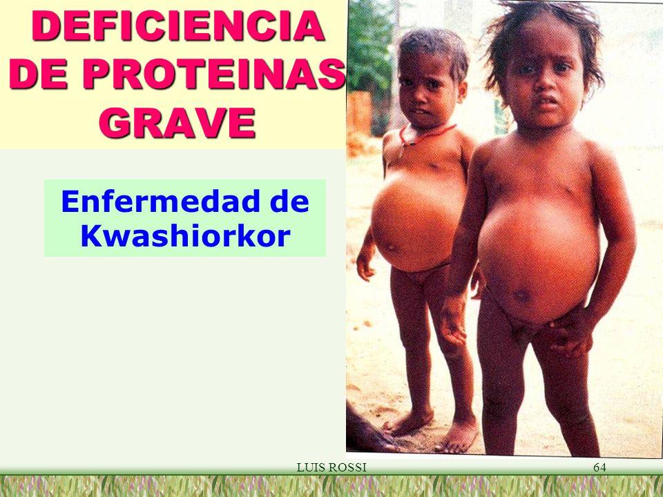 DEFICIENCIA DE PROTEINAS GRAVE