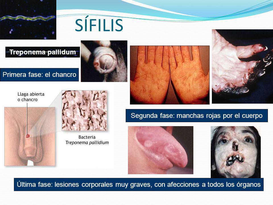 SÍFILIS Treponema pallidum Primera fase: el chancro