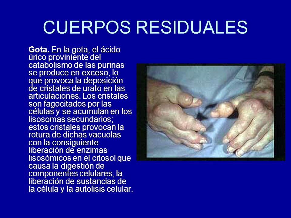 CUERPOS RESIDUALES
