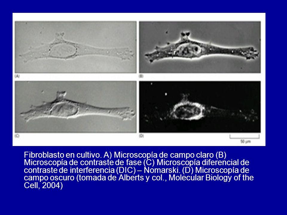 Fibroblasto en cultivo