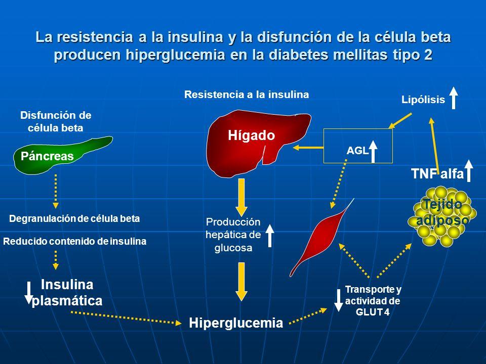La resistencia a la insulina y la disfunción de la célula beta producen hiperglucemia en la diabetes mellitas tipo 2