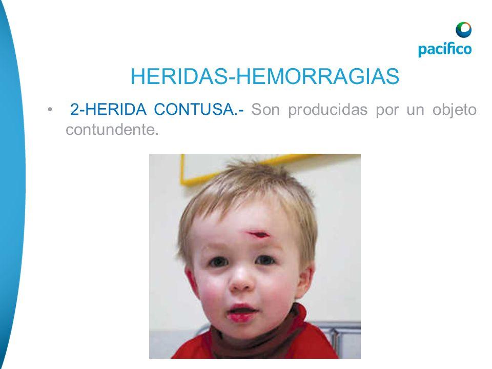 HERIDAS-HEMORRAGIAS 2-HERIDA CONTUSA.- Son producidas por un objeto contundente.