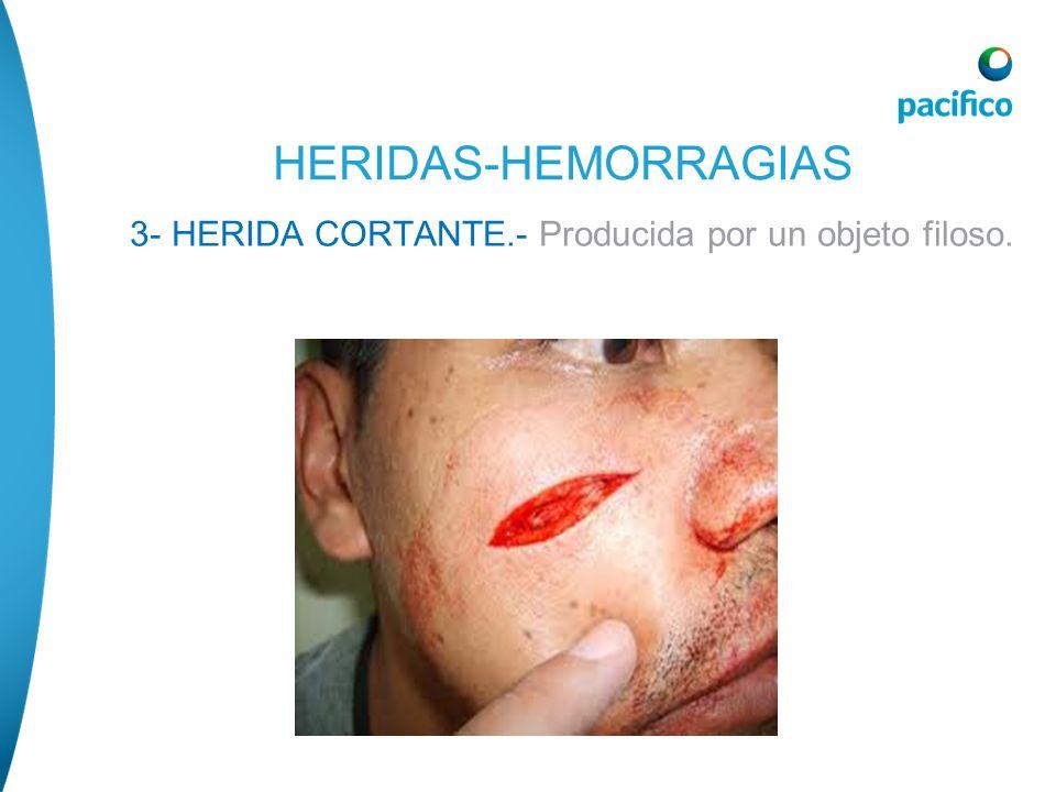 HERIDAS-HEMORRAGIAS 3- HERIDA CORTANTE.- Producida por un objeto filoso.
