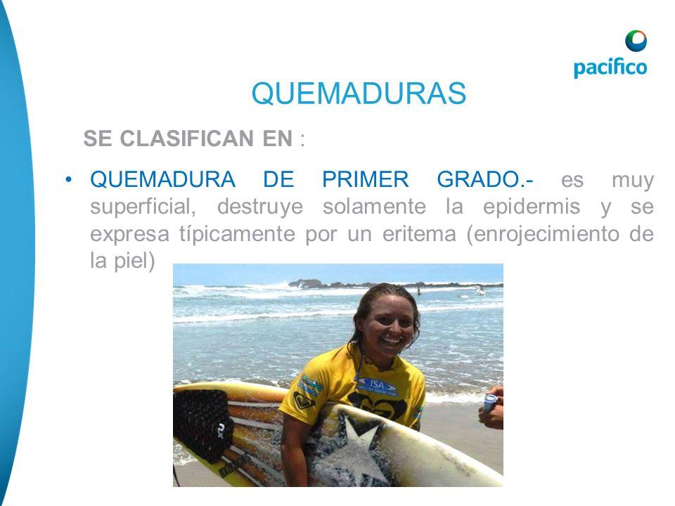 QUEMADURAS SE CLASIFICAN EN :