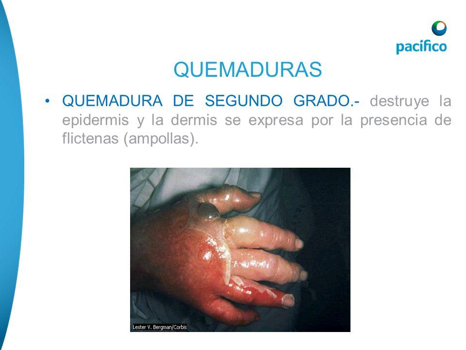 QUEMADURAS QUEMADURA DE SEGUNDO GRADO.- destruye la epidermis y la dermis se expresa por la presencia de flictenas (ampollas).