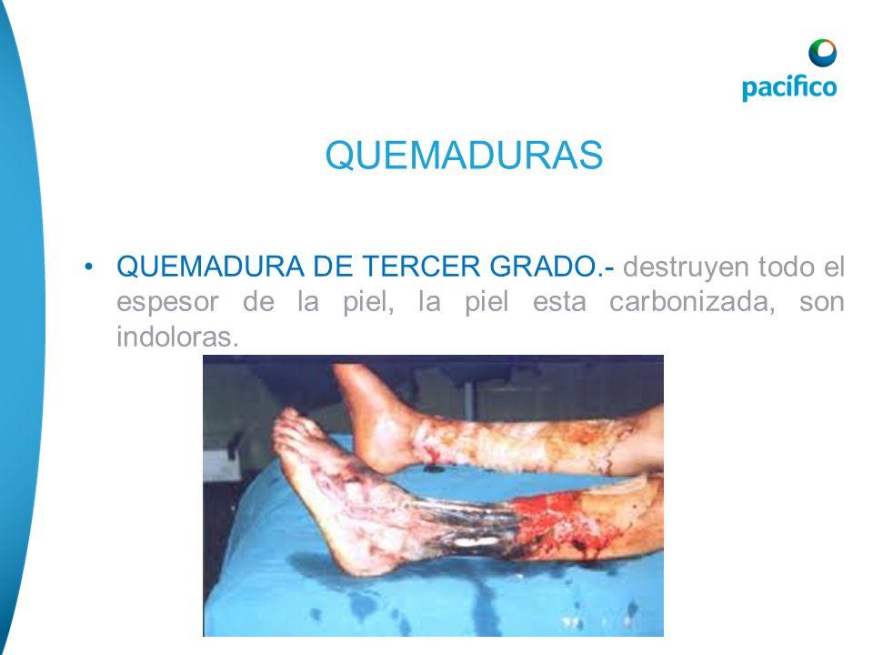 QUEMADURASQUEMADURA DE TERCER GRADO.- destruyen todo el espesor de la piel, la piel esta carbonizada, son indoloras.