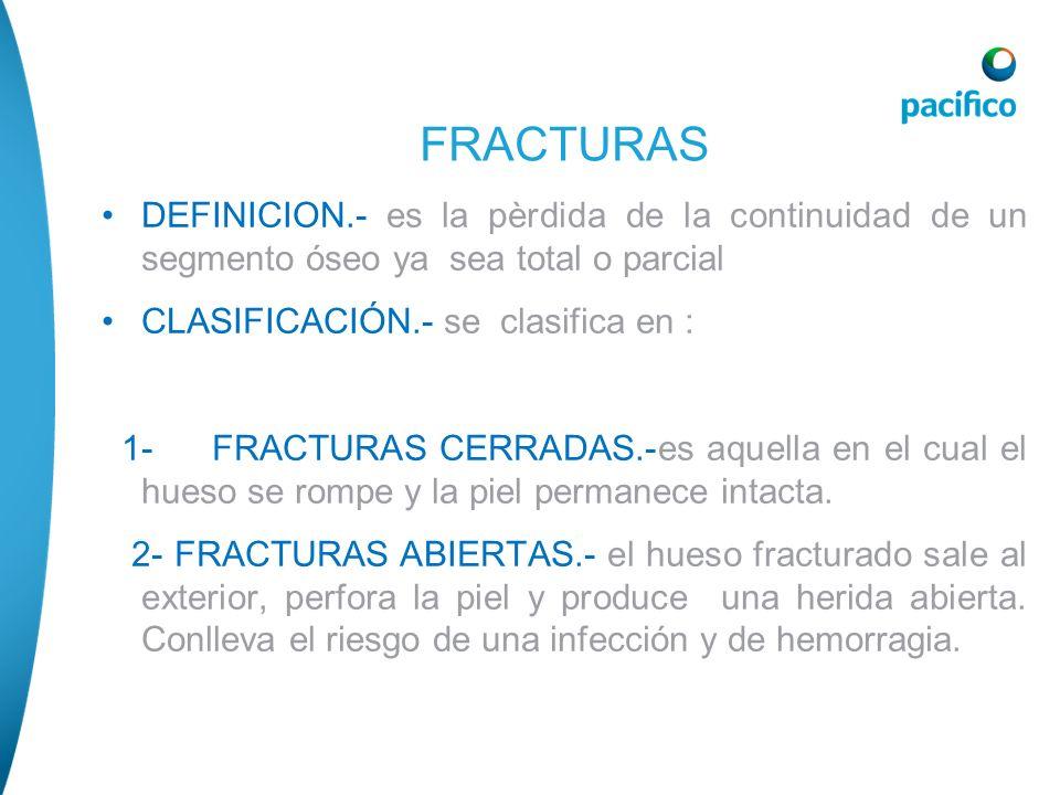 FRACTURASDEFINICION.- es la pèrdida de la continuidad de un segmento óseo ya sea total o parcial. CLASIFICACIÓN.- se clasifica en :