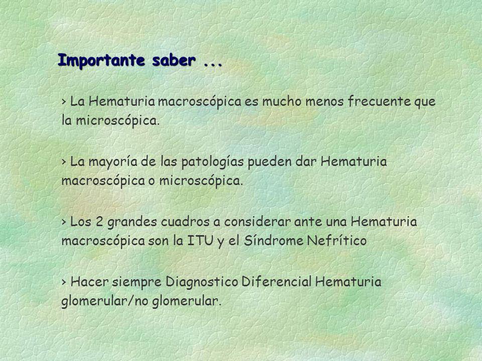 Importante saber ... La Hematuria macroscópica es mucho menos frecuente que la microscópica.