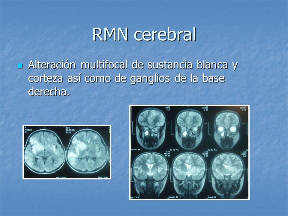 RMN cerebral Alteración multifocal de sustancia blanca y corteza así como de ganglios de la base derecha.