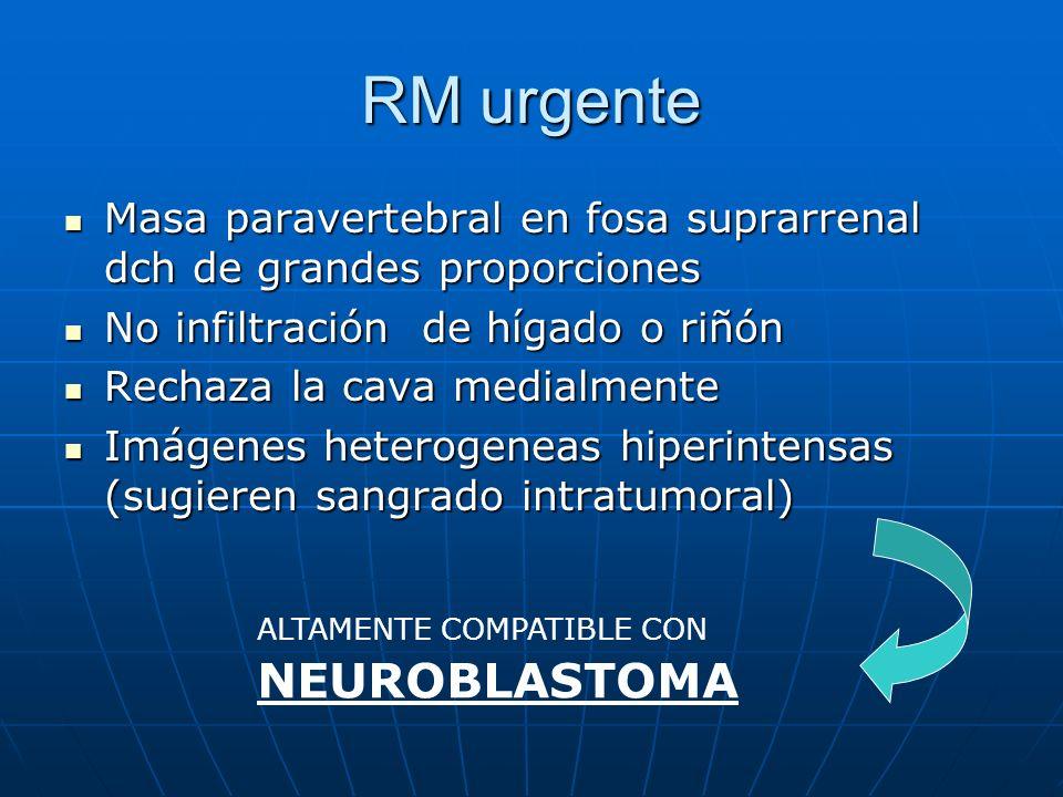 RM urgente Masa paravertebral en fosa suprarrenal dch de grandes proporciones. No infiltración de hígado o riñón.