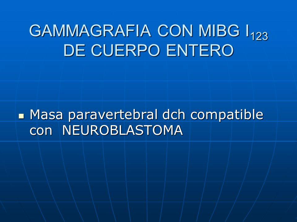 GAMMAGRAFIA CON MIBG I123 DE CUERPO ENTERO