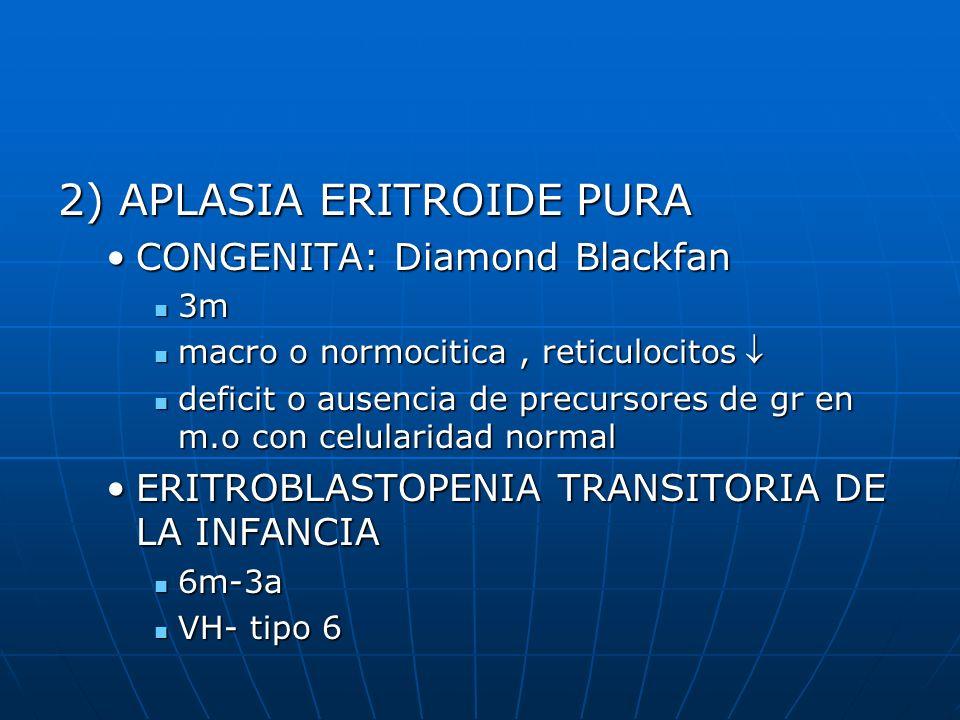 2) APLASIA ERITROIDE PURA