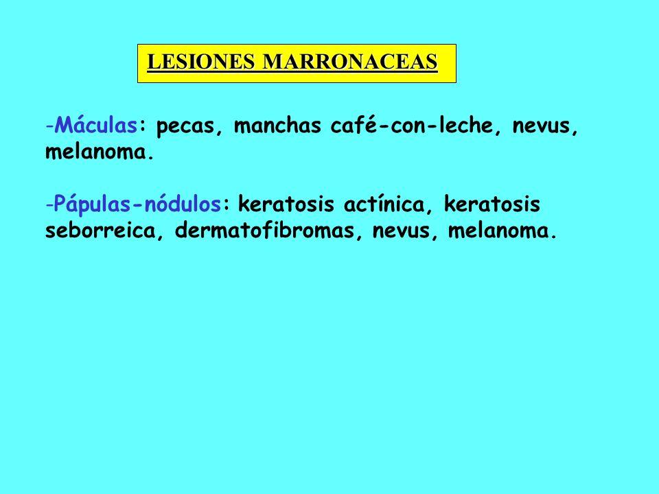 LESIONES MARRONACEASMáculas: pecas, manchas café-con-leche, nevus, melanoma.