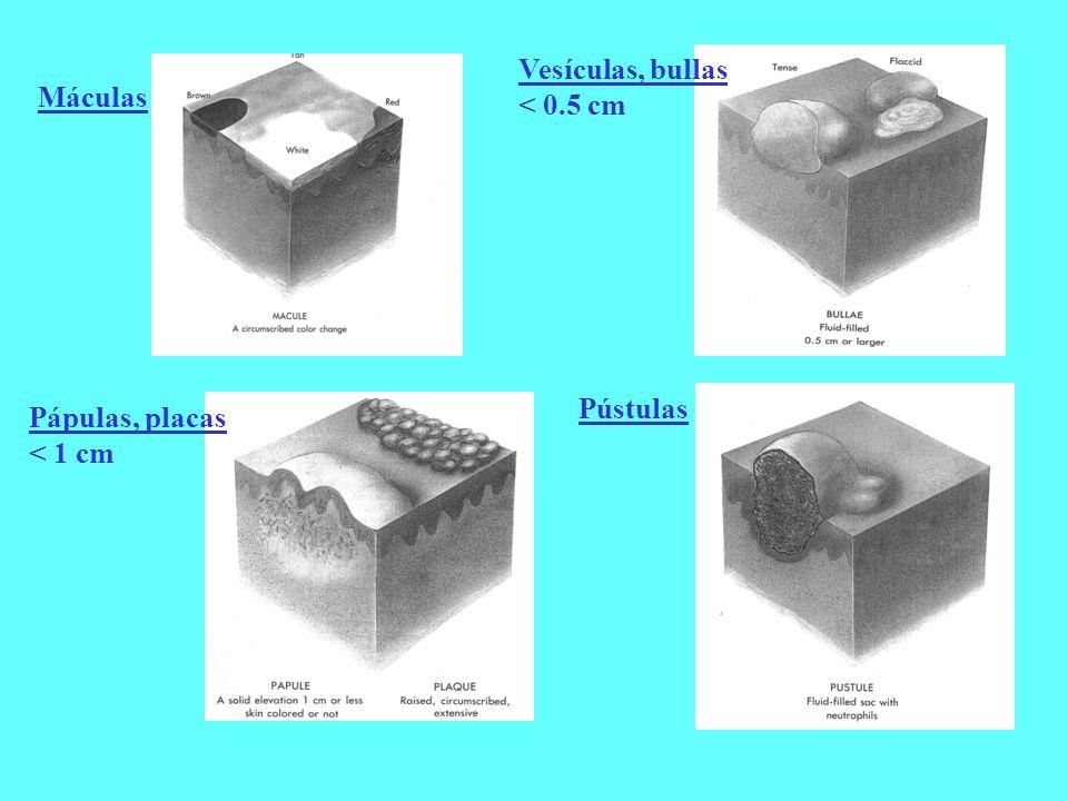 Vesículas, bullas < 0.5 cm Máculas Pústulas Pápulas, placas < 1 cm