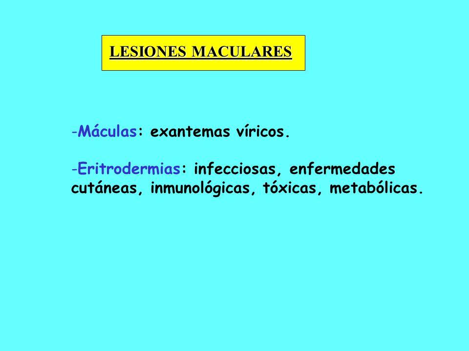 LESIONES MACULARES Máculas: exantemas víricos.