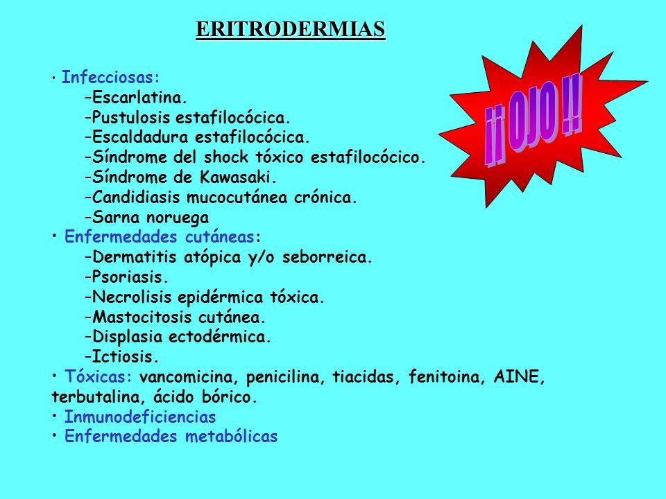 ¡¡ OJO !! ERITRODERMIAS Escarlatina. Pustulosis estafilocócica.