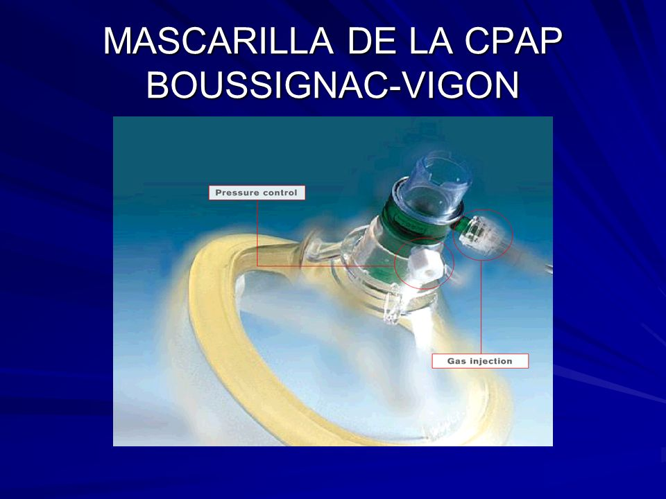 MASCARILLA DE LA CPAP BOUSSIGNAC-VIGON
