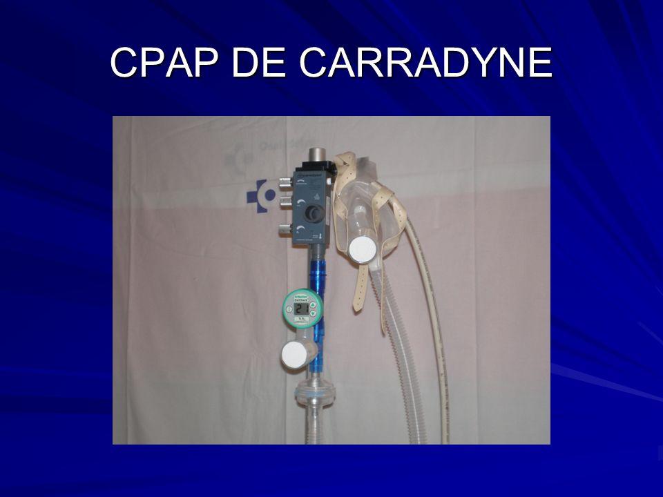 CPAP DE CARRADYNE