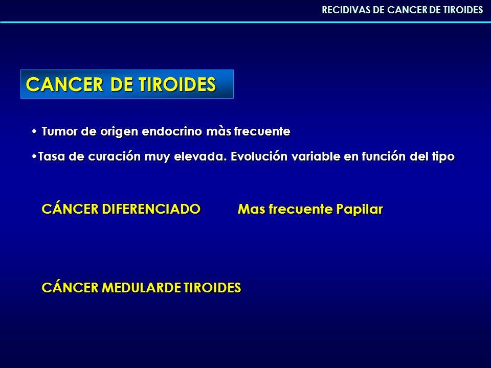 CANCER DE TIROIDES CÁNCER DIFERENCIADO Mas frecuente Papilar