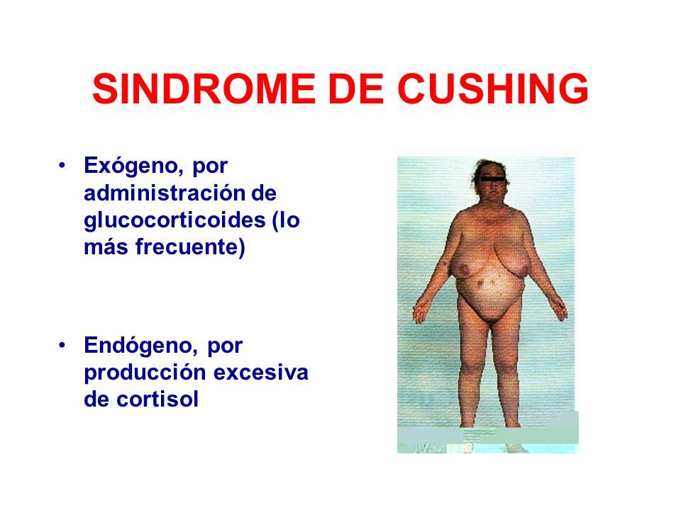 SINDROME DE CUSHING Exógeno, por administración de glucocorticoides (lo más frecuente) Endógeno, por producción excesiva de cortisol.