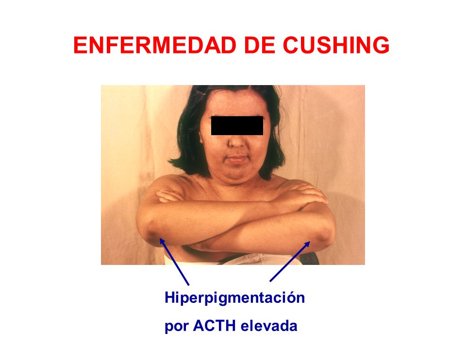 ENFERMEDAD DE CUSHING Hiperpigmentación por ACTH elevada
