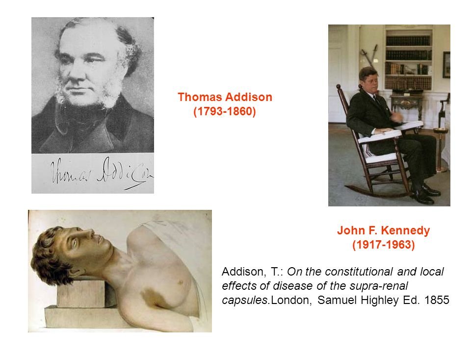 Thomas Addison ( ) John F. Kennedy. ( ) Addison, T.: On the constitutional and local.