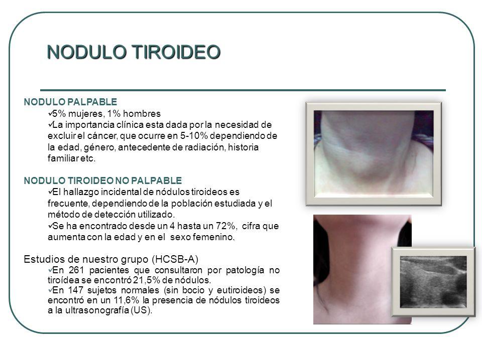 NODULO TIROIDEO Estudios de nuestro grupo (HCSB-A) NODULO PALPABLE