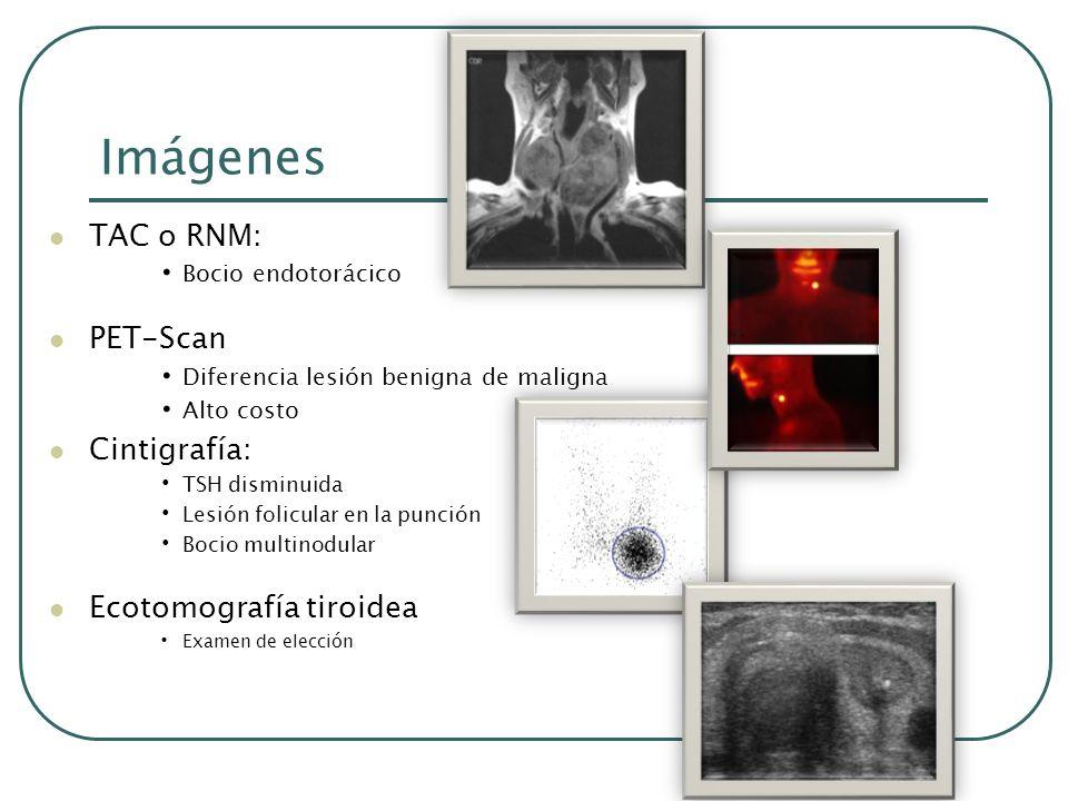 Imágenes TAC o RNM: PET-Scan Cintigrafía: Ecotomografía tiroidea