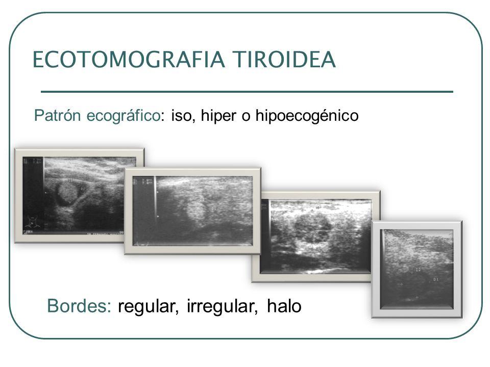 ECOTOMOGRAFIA TIROIDEA