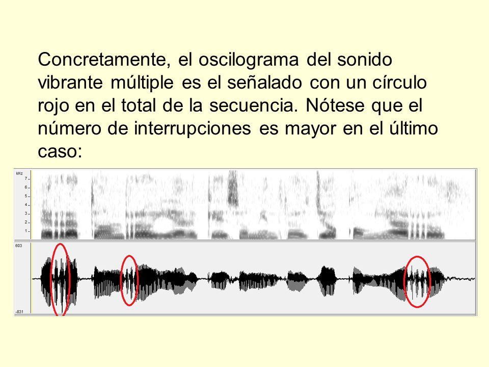Concretamente, el oscilograma del sonido vibrante múltiple es el señalado con un círculo rojo en el total de la secuencia.