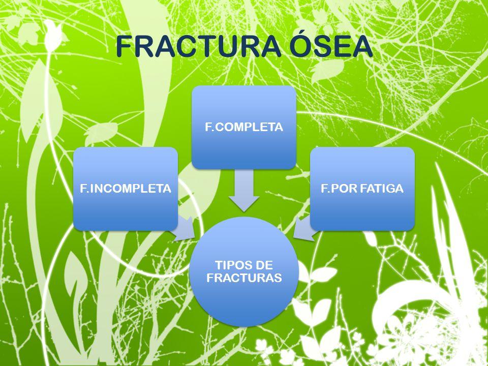 FRACTURA ÓSEA TIPOS DE FRACTURAS F.INCOMPLETA F.COMPLETA F.POR FATIGA