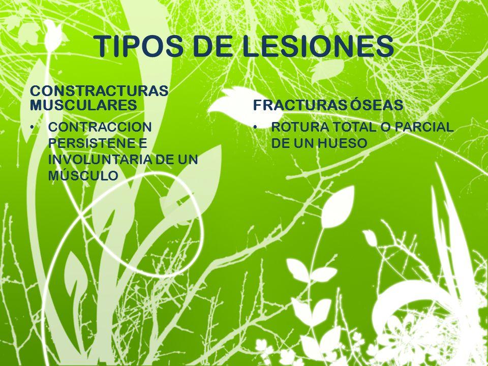 TIPOS DE LESIONES CONSTRACTURAS MUSCULARES FRACTURAS ÓSEAS