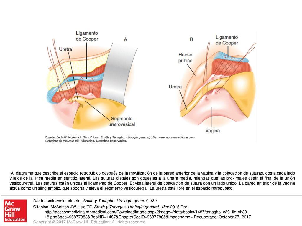 Vistoso Diagrama De La Anatomía Sexual Embellecimiento - Anatomía de ...