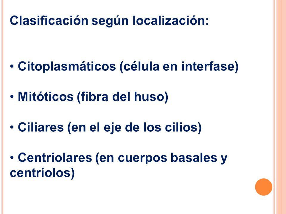 Clasificación según localización: