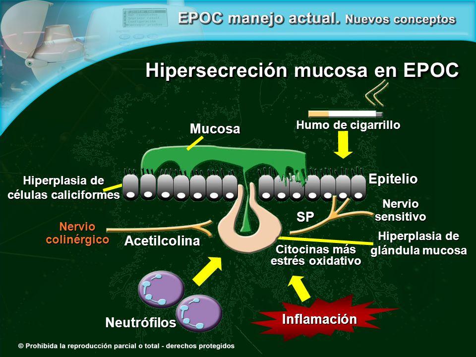 Hipersecreción mucosa en EPOC