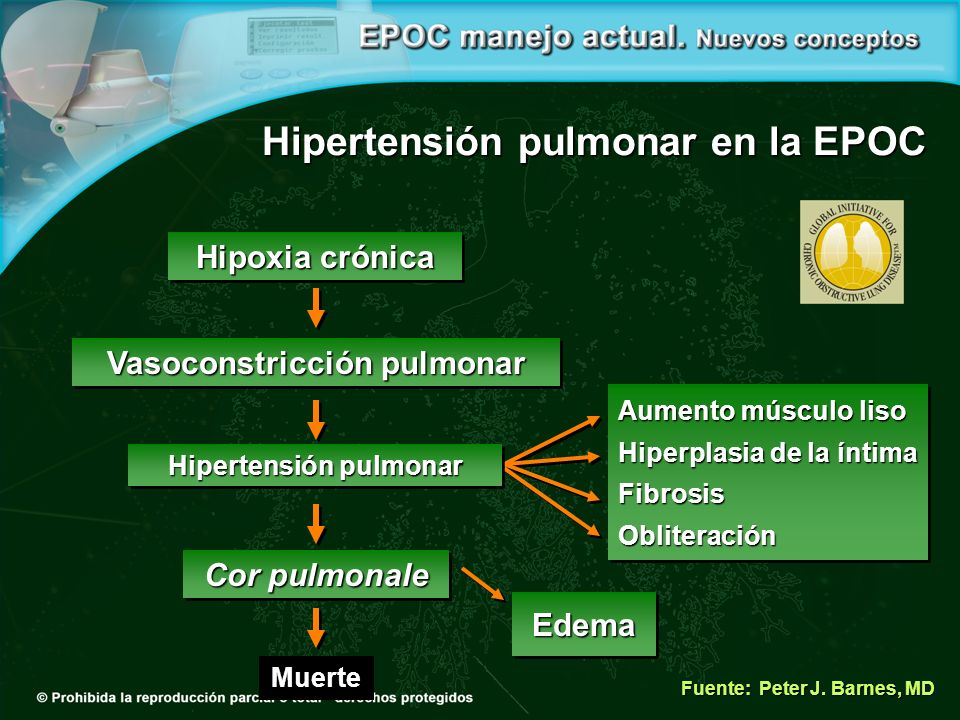 Hipertensión pulmonar en la EPOC