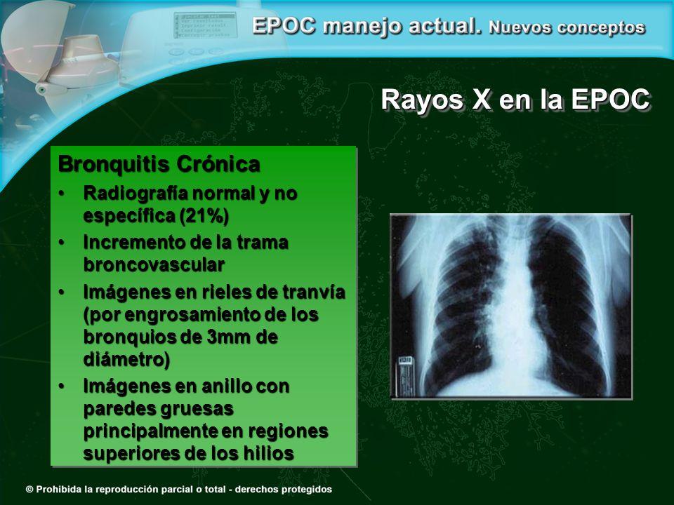 Rayos X en la EPOC Bronquitis Crónica