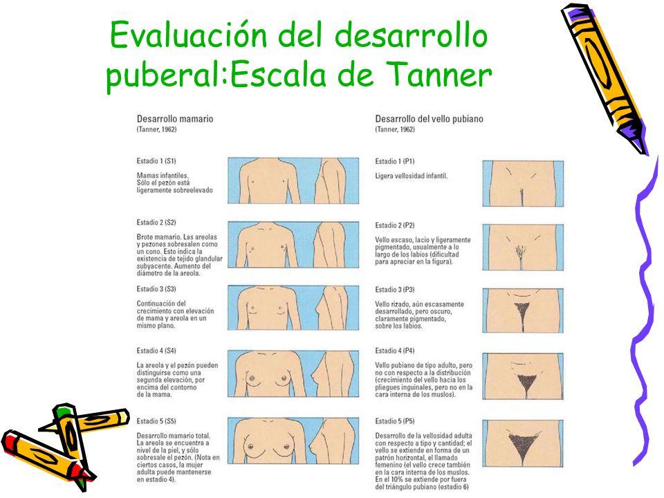 Evaluación del desarrollo puberal:Escala de Tanner