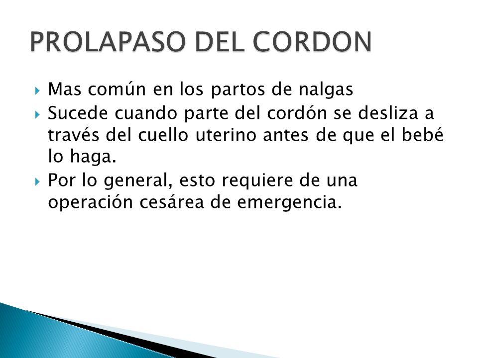 PROLAPASO DEL CORDON Mas común en los partos de nalgas