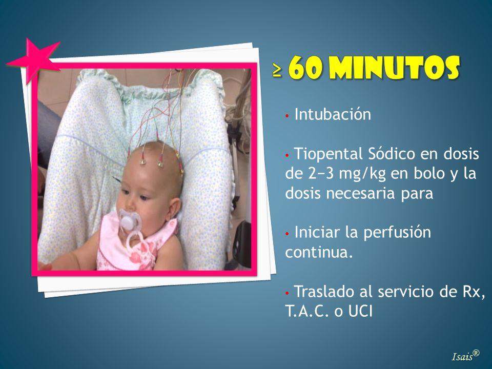 ≥ 60 minutosIntubación. Tiopental Sódico en dosis de 2−3 mg/kg en bolo y la dosis necesaria para. Iniciar la perfusión continua.