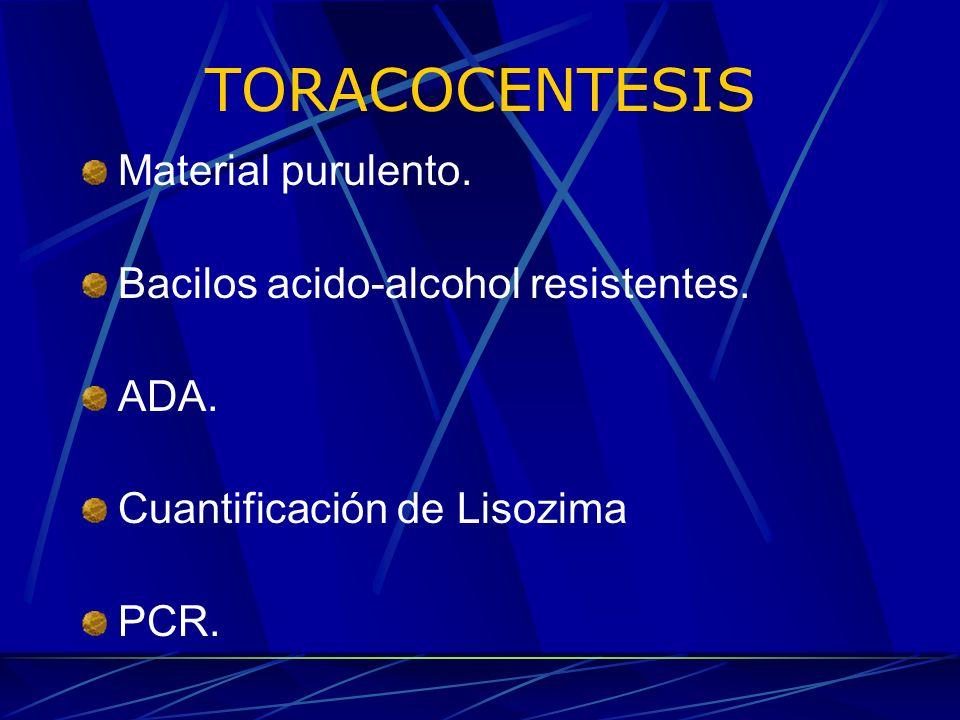 TORACOCENTESIS Material purulento. Bacilos acido-alcohol resistentes.