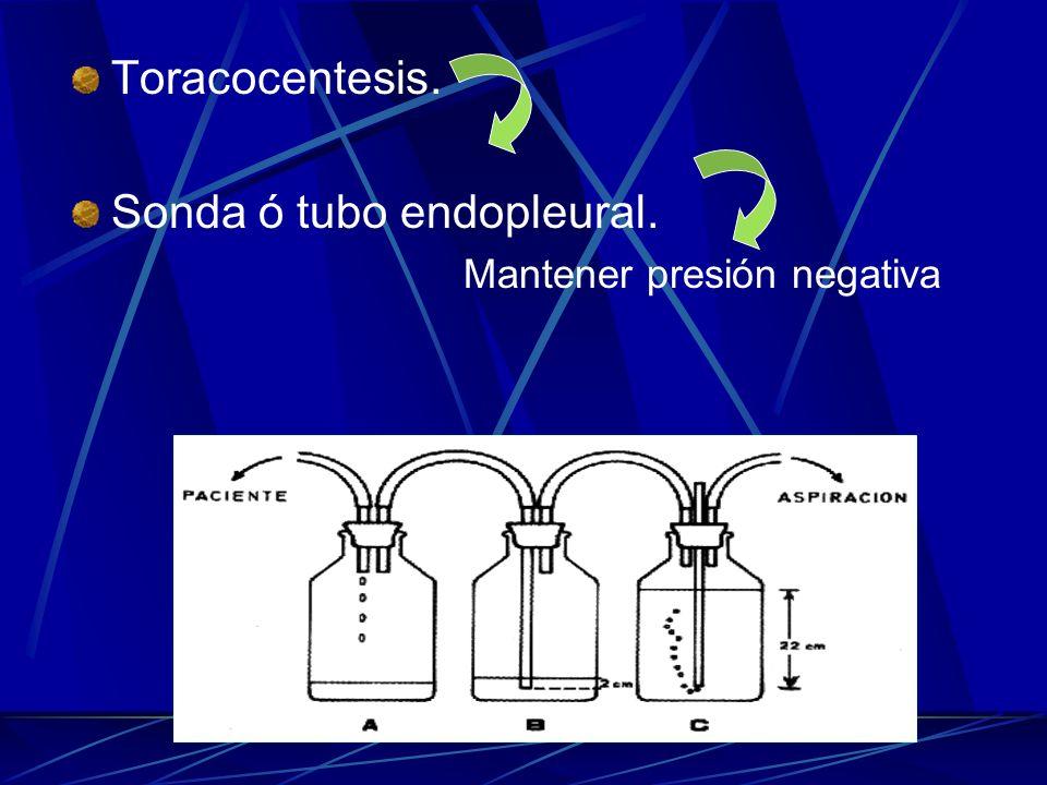 Sonda ó tubo endopleural.