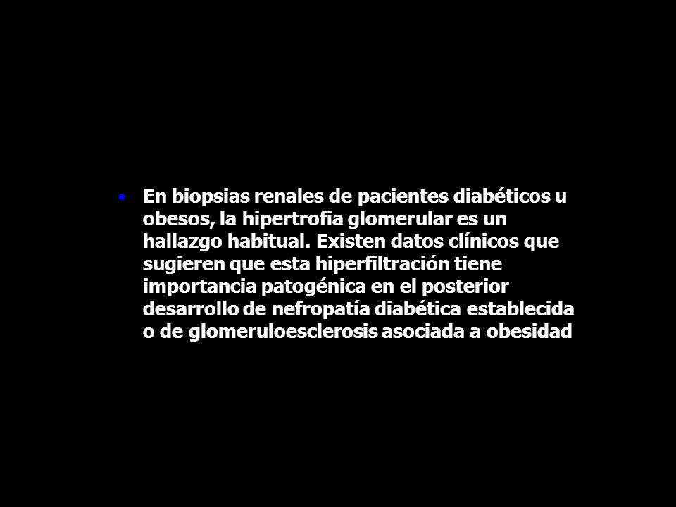 En biopsias renales de pacientes diabéticos u obesos, la hipertrofia glomerular es un hallazgo habitual.