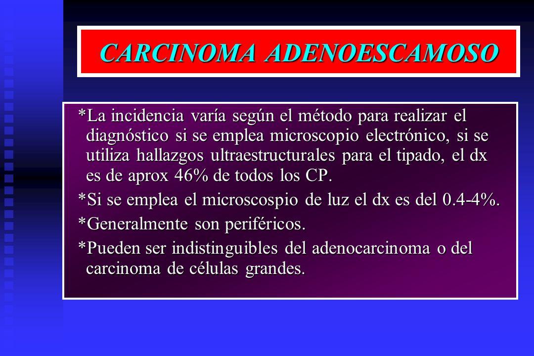 CARCINOMA ADENOESCAMOSO