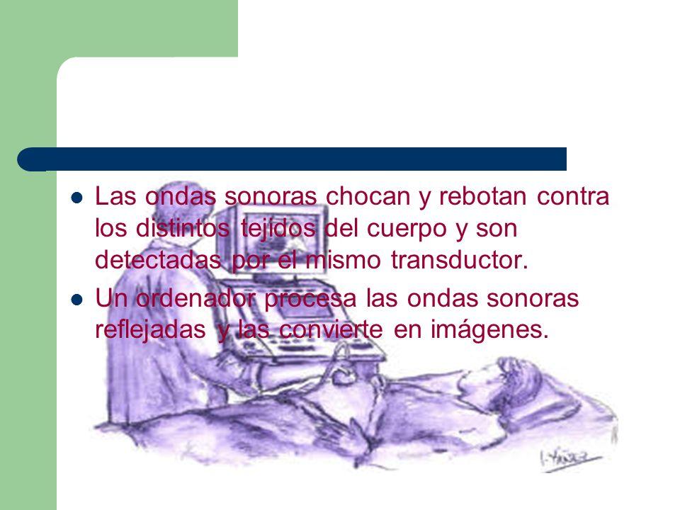 Las ondas sonoras chocan y rebotan contra los distintos tejidos del cuerpo y son detectadas por el mismo transductor.