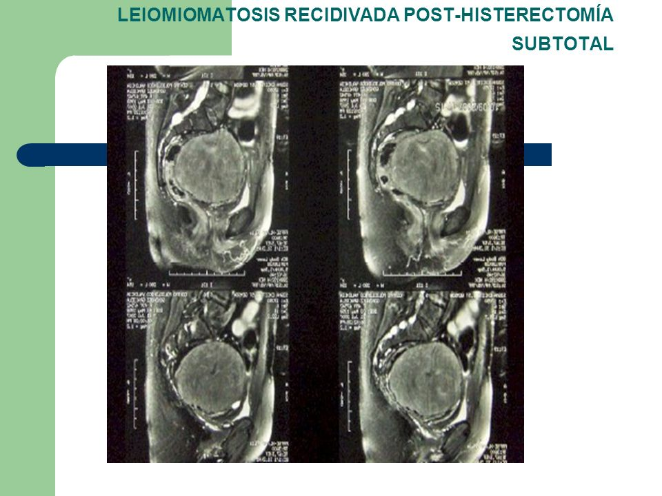 LEIOMIOMATOSIS RECIDIVADA POST-HISTERECTOMÍA SUBTOTAL