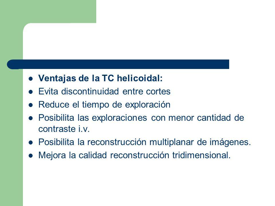 Ventajas de la TC helicoidal: