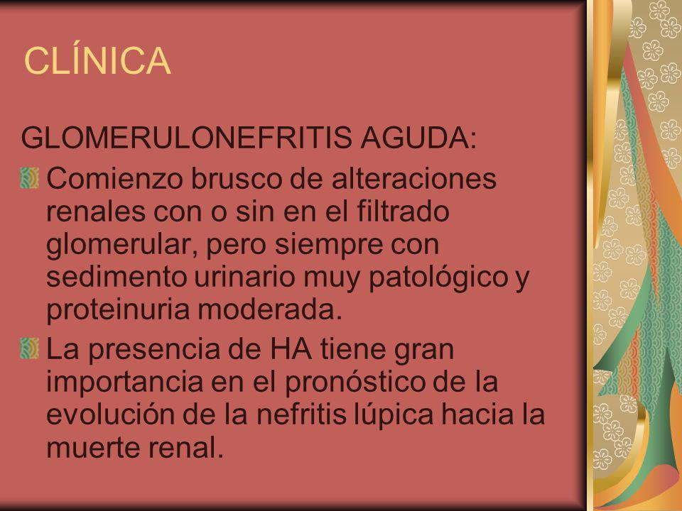 CLÍNICA GLOMERULONEFRITIS AGUDA: